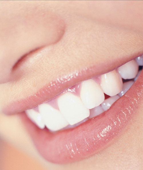 sonrisa-blanca